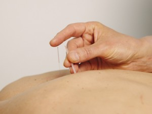 Acupuncture treatment being administered to a patient's back