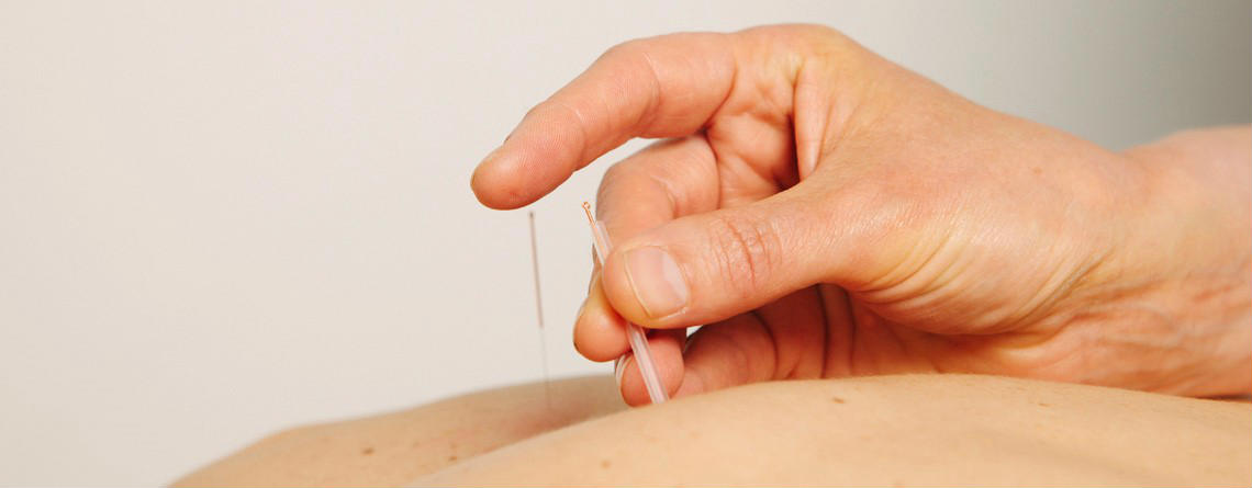 Acupuncture at The Physio Rooms