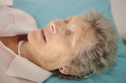 Older lady receiving facial acupuncture treatment.